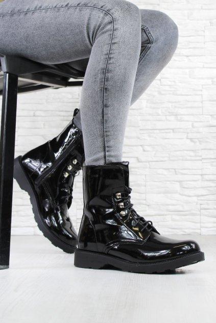 Lakované kotníkové boty W104 1B (1)