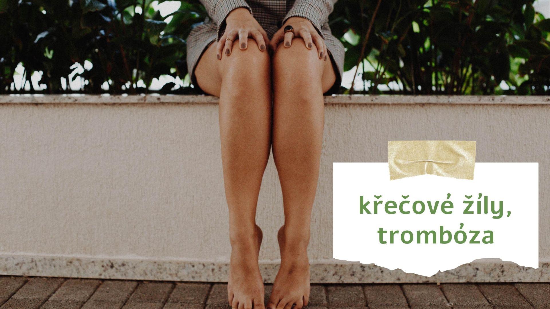 Trápí mě: Křečové žíly a trombóza