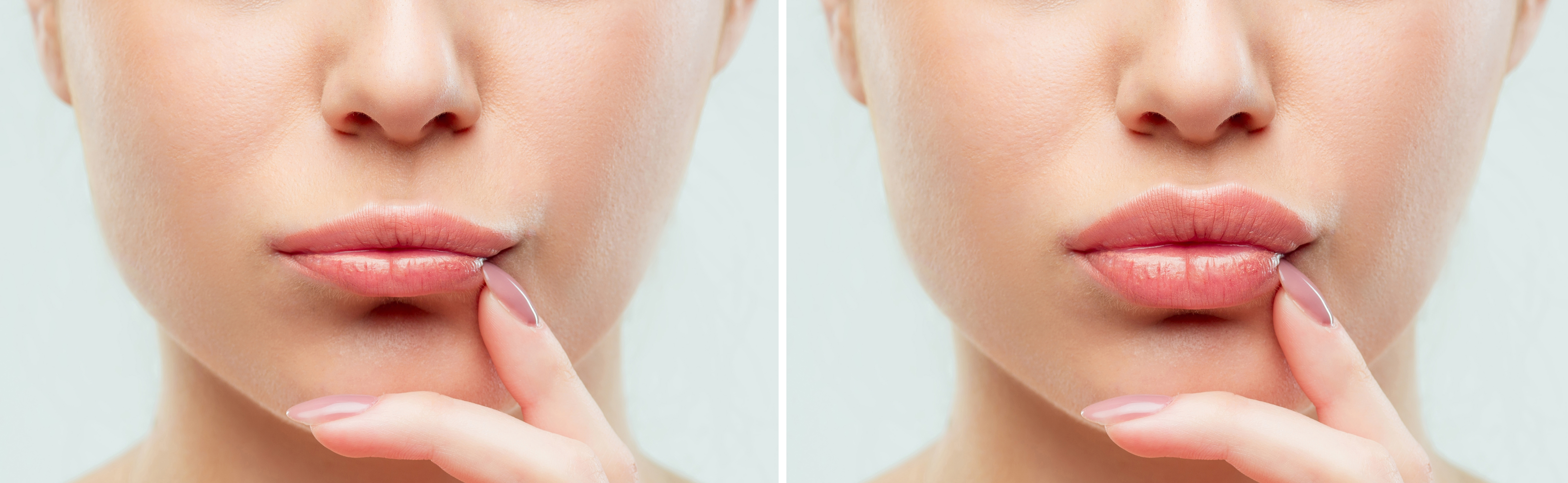 bigstock-Before-And-After-Lips-Filler-I-234503275_InPixio