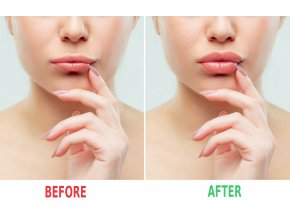 bigstock Before And After Lips Filler I 234503275