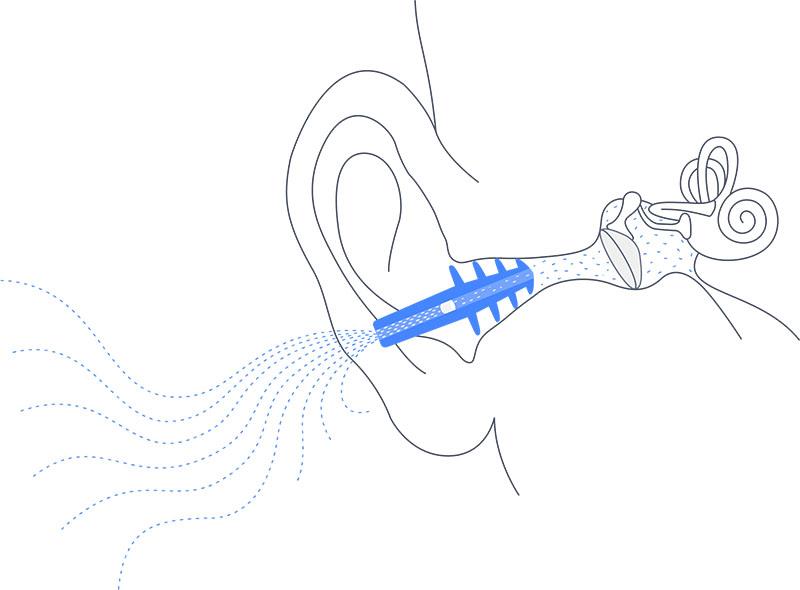 Cirrus earplanes špunty do uší do letadla pro děti original for kids detail v uchu