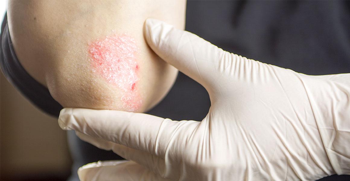 Atopická dermatitida