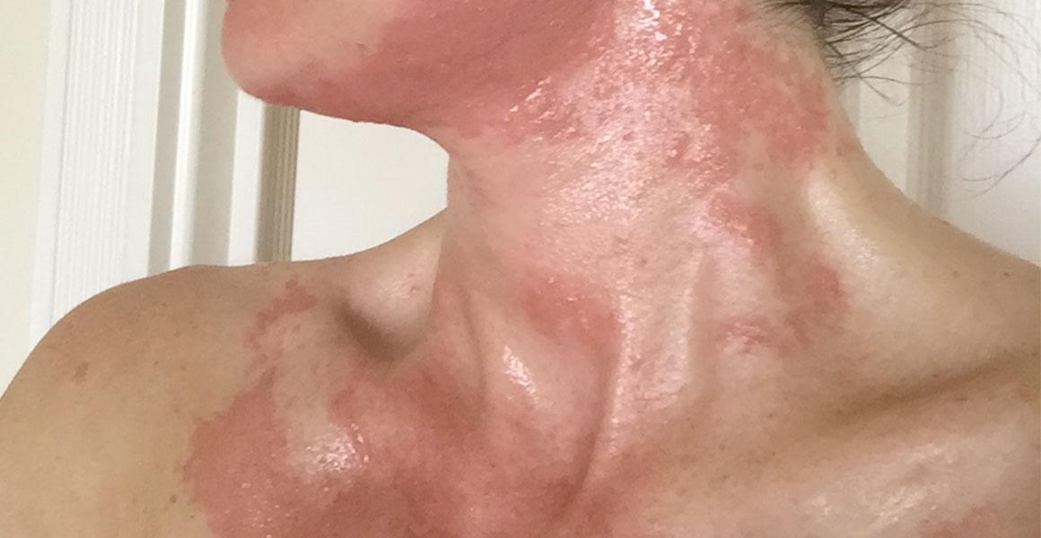 Alergická reakce na obličeji