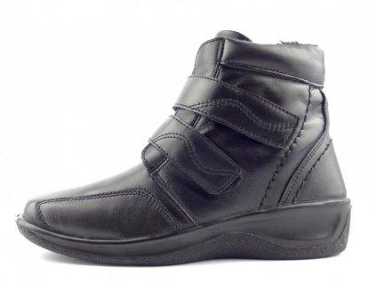 kotnikova obuv cerna 4697 fur 8149