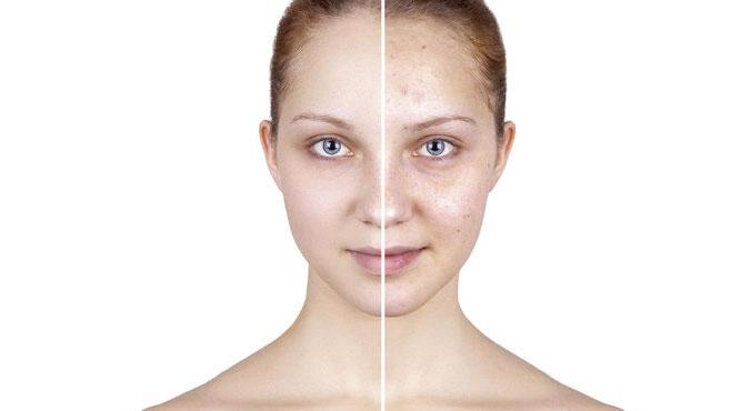 Dermokosmetika a pokožka s kapiláry