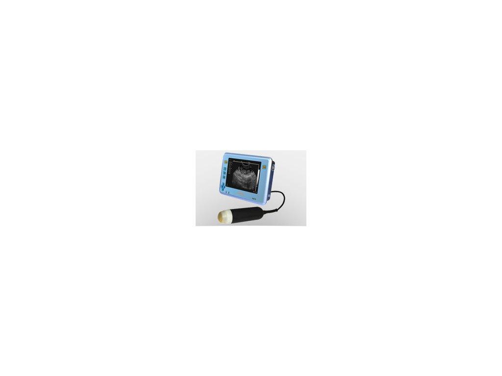 Digitální ultrazvuk HD 6