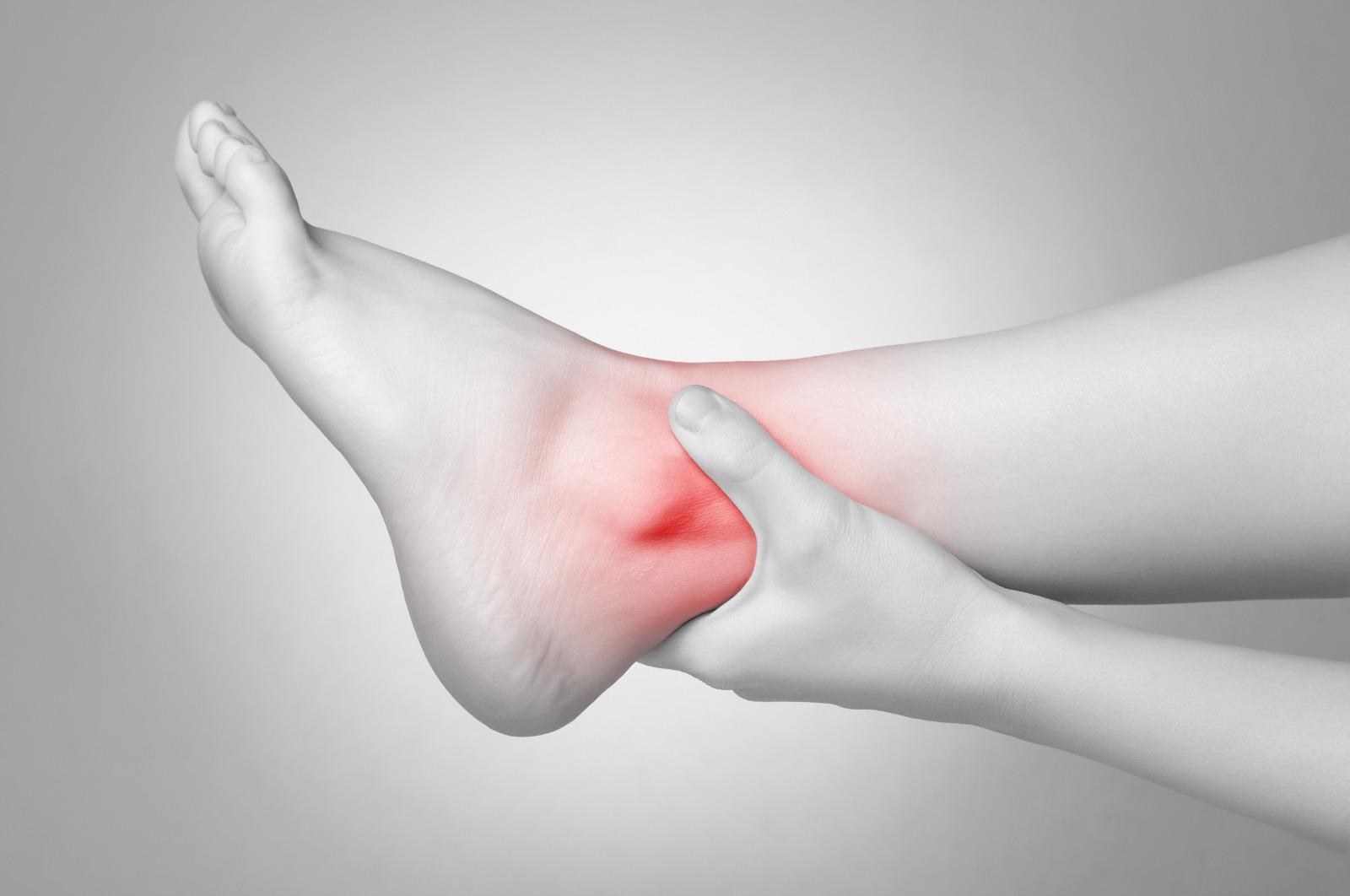Revmatoidní artritida – příznaky projevující se na chodidle.