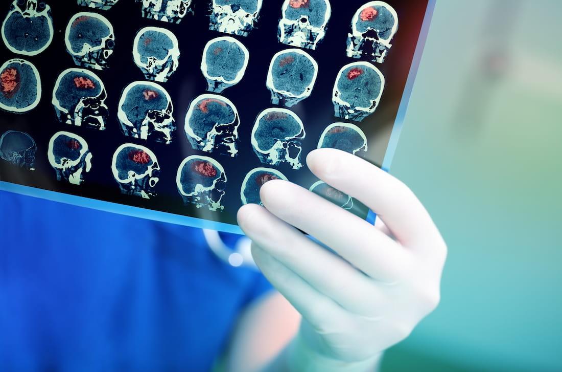 Doktor drží snímek mozku pacienta, jehož postihla cévní mozková příhoda