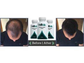 Follixin léčba při vypadávaní vlasů.