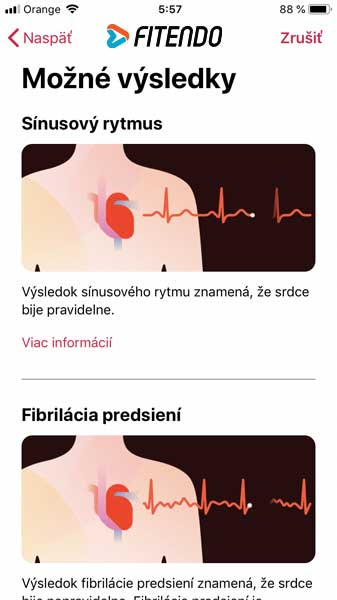 apple-watch-series-4-ekg-meranie-04