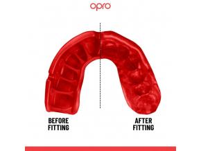 Chránič zubů Opro Platinum - černá/červená/bílé zuby