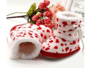 Dětské boty- teplé zimní válenky capáčky se skvrnami- 3 barvy
