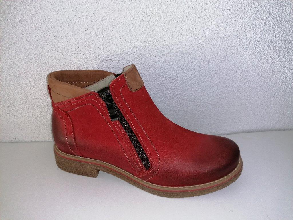 Dámska kotniková obuv B 318 červená