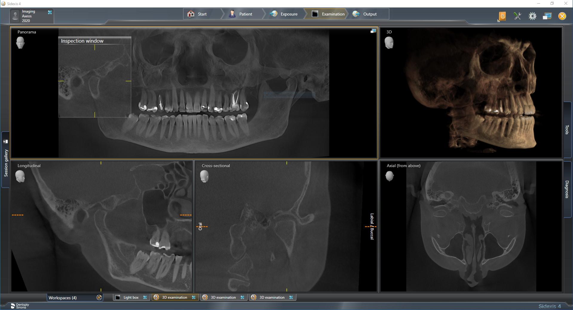 IMG-Image-Axeos-17x13-HD-X-ray