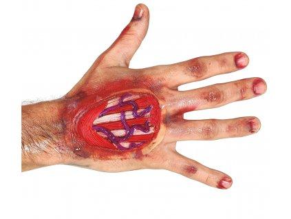 Jizva - Zranění na ruce