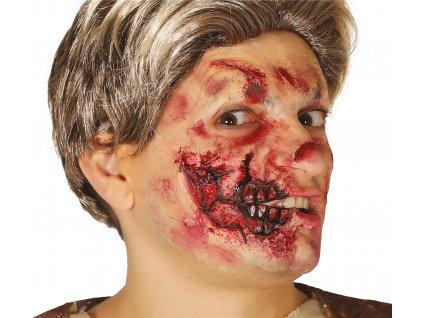 Cicatrice - jumătate din gură