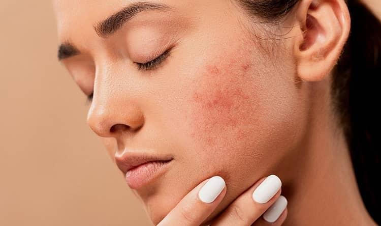 Jak se rychle zbavit akné? Dejte šanci CBD