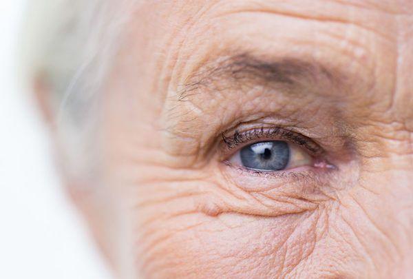 Stárnutí a vrásky