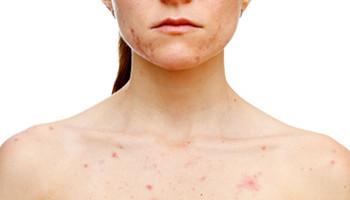 Pattanásos és problémás bőr