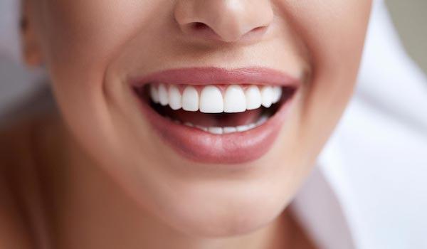 8 krokov k žiarivému a zdravému úsmevu