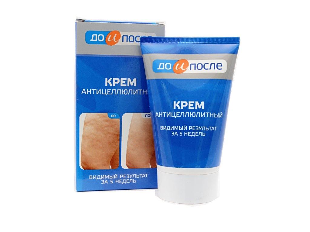 """Krém proti celulitíde a zlepšenie krvného obehu v bunkách - """"Pred a Po"""" 100 ml"""