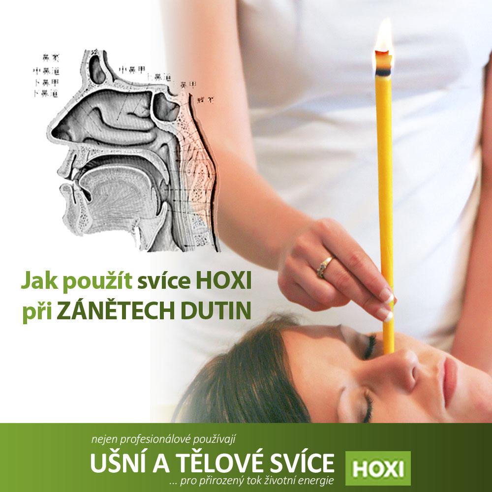 Aplikace ušních svící HOXI při zánětech dutin