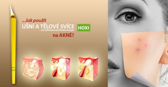 Jak aplikovat tělové svíce Hoxi při akné?