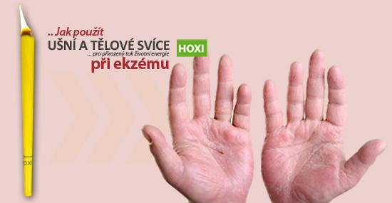 Jak správně aplikovat ušní a tělové svíce HOXI při Ekzému?