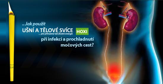 Aplikace tělových svící HOXI při infekci a prochladnutí močových cest