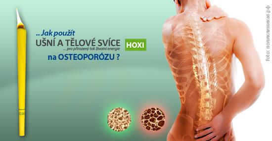 Aplikace tělových svící HOXI na Osteoporózu