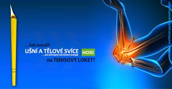 Aplikace tělových svíček HOXI na tenisový loket
