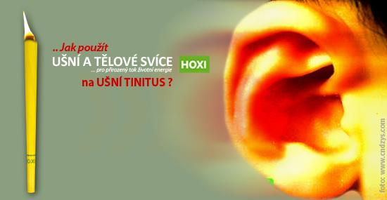 Aplikace ušních svící HOXI na ušní Tinitus