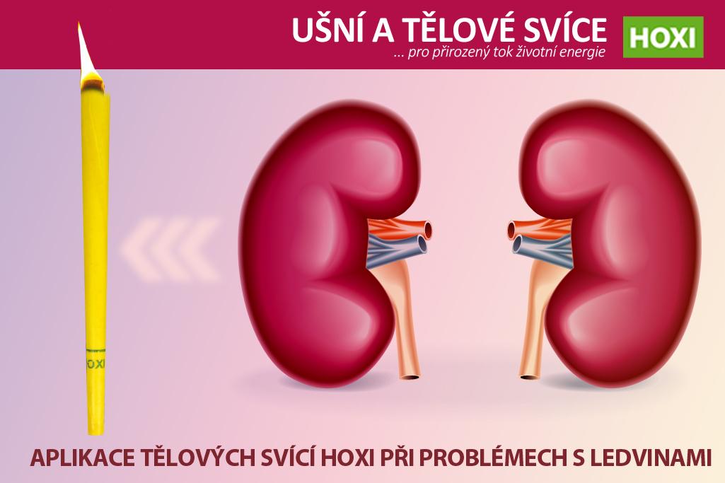 Aplikace tělových svící HOXI při problémech s ledvinami