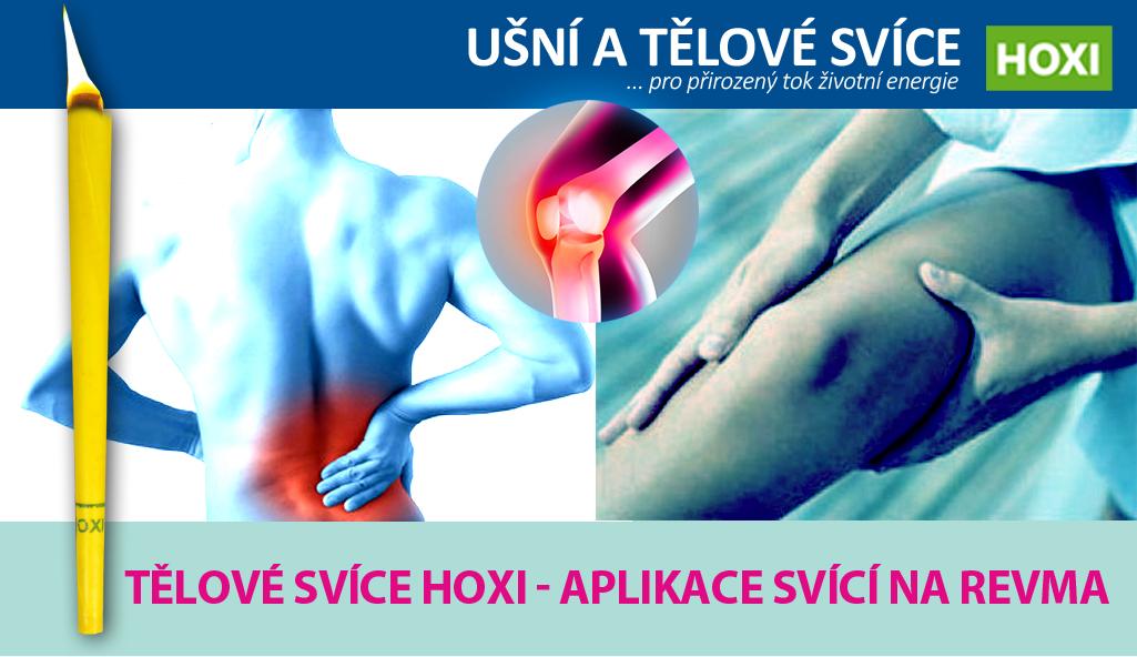 Aplikace tělových svící HOXI na revma