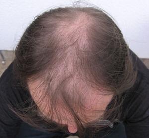 002-před-zahuštěním-Mane-husté-vlasy