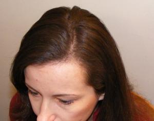 005-po-zahuštění-Mane-husté-vlasy