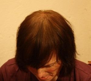 006-po-zahuštění-Mane-husté-vlasy