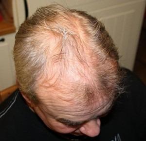 007-před-zahuštěním-Mane-husté-vlasy
