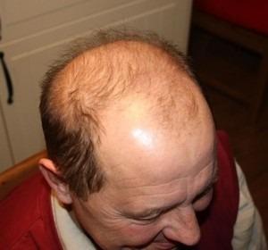 008-před-zahuštěním-Mane-husté-vlasy