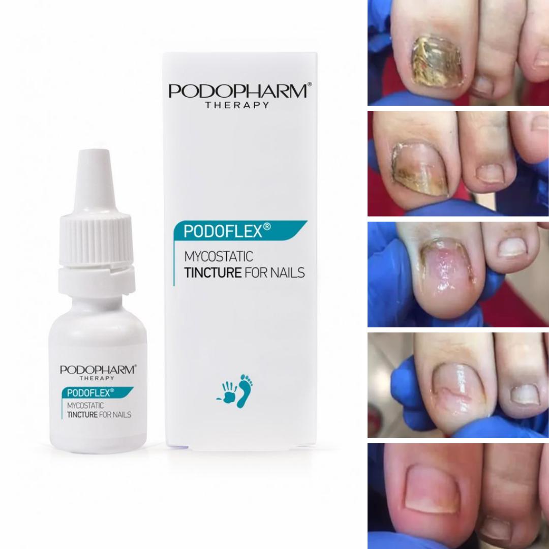 Tinktúra na nechty proti plesni Podpharm Mycostatic Tincture