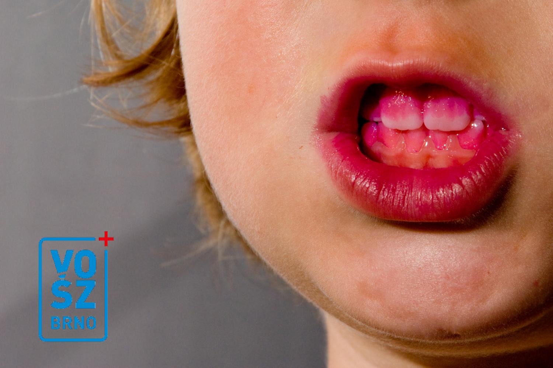 Experiment studentky dentální hygieny s kartáčkem IONICKISS