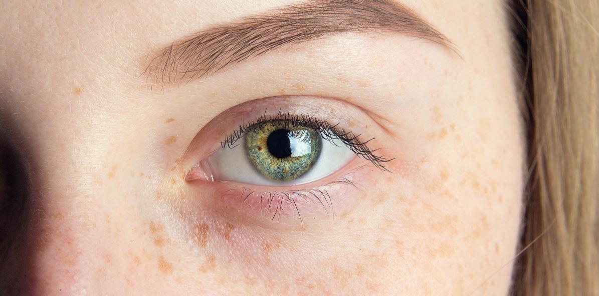 pigmentace