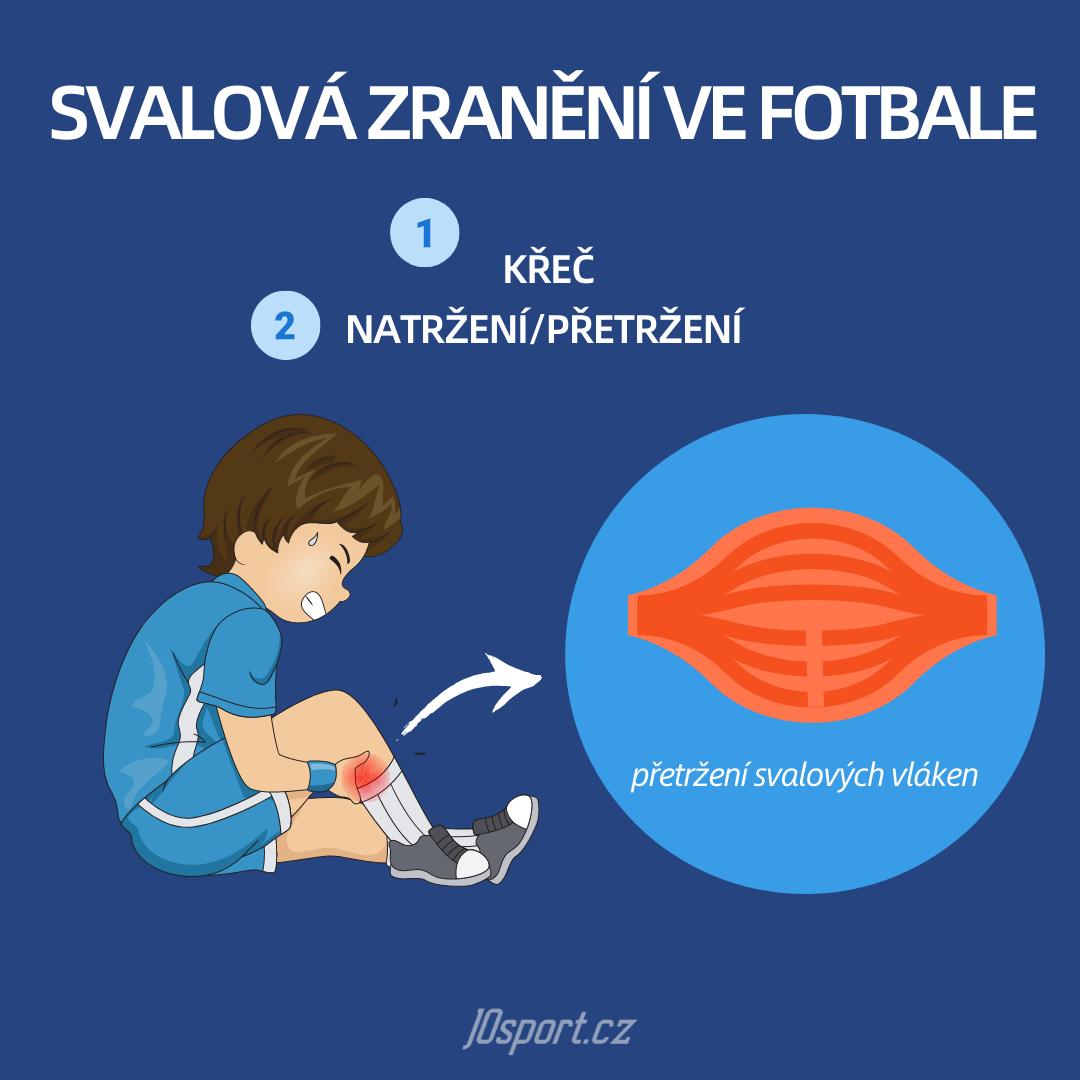 Nejčastější svalová zranění ve fotbale