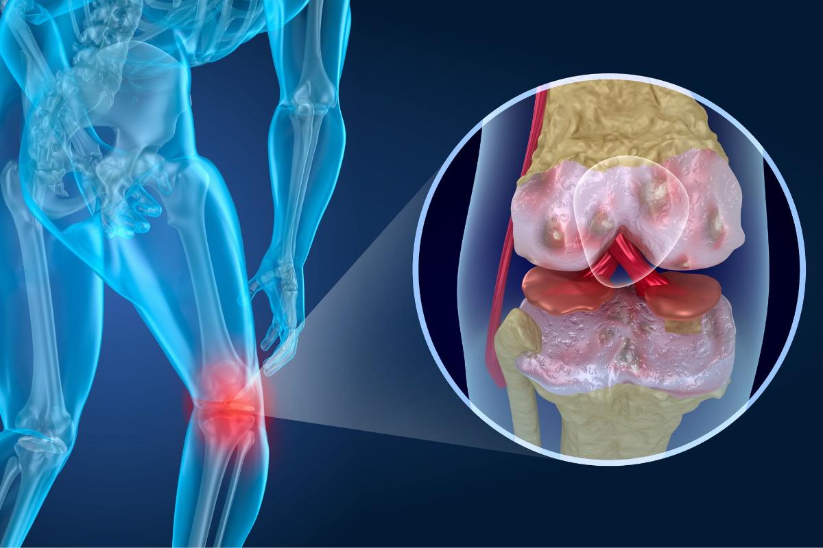 Vitamíny pre úľavu od bolesti kĺbov