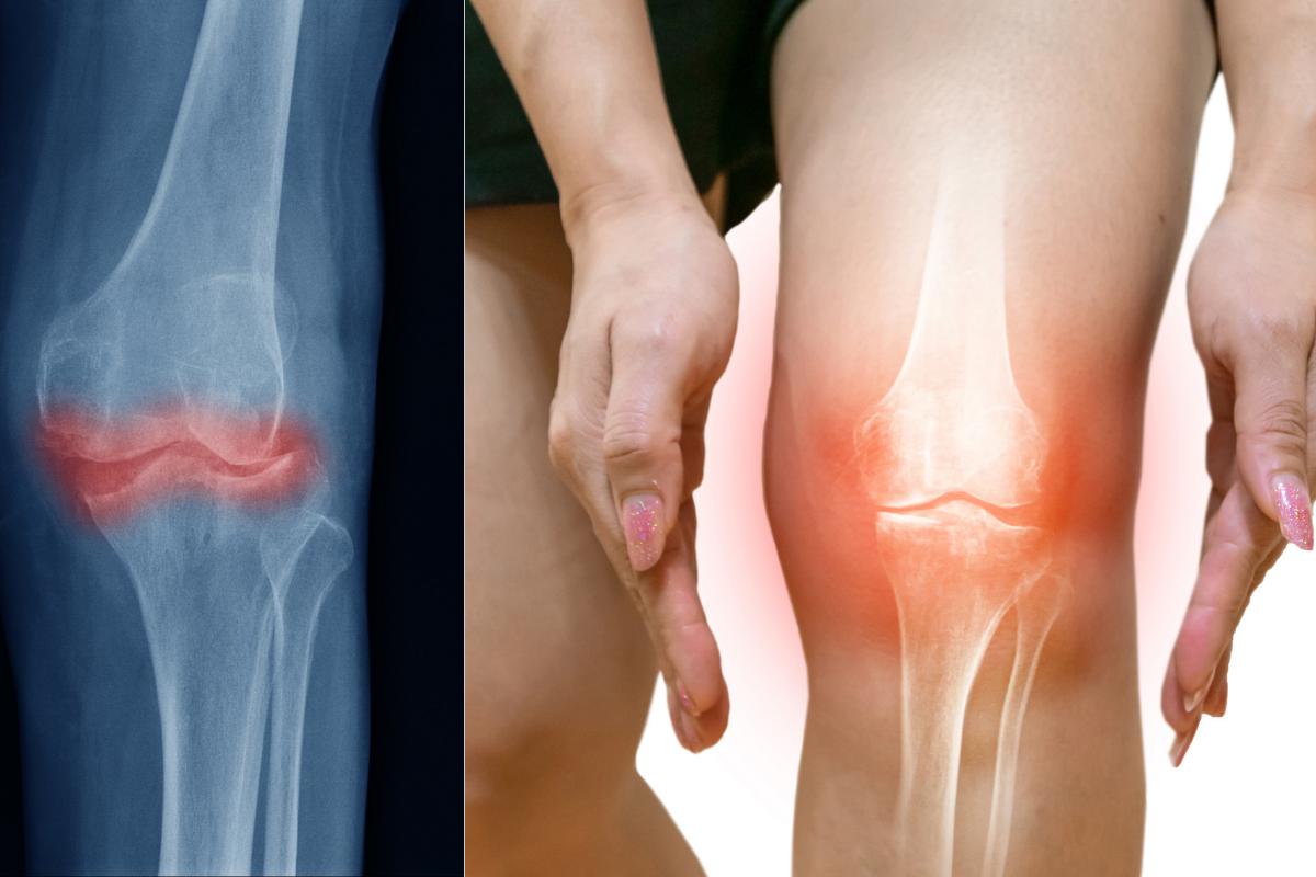 B-komplex a jeho vplyv pri liečbe osteoartrózy a reumatoidnej artritídy