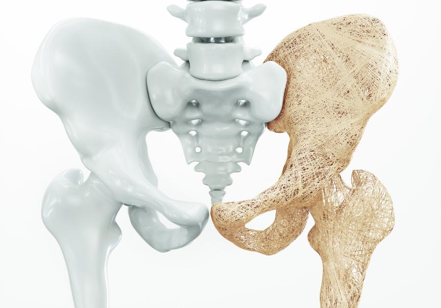 Hydrolyzovaný kolagén – vhodná doplnková terapia pri osteoporóze a osteoartróze