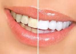 Zubní pasta AP24, vaše šetrná cesta k bělejšímu úsměvu