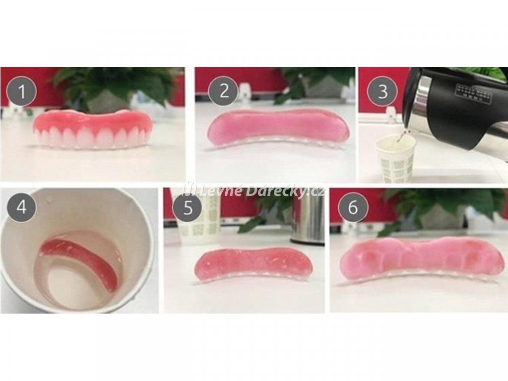 Silikonová zubní protéza 9