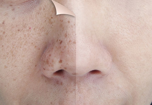 Beat-Those-Dark-Spots-How-to-Prevent-and-Treat-Skin-Pigmentation