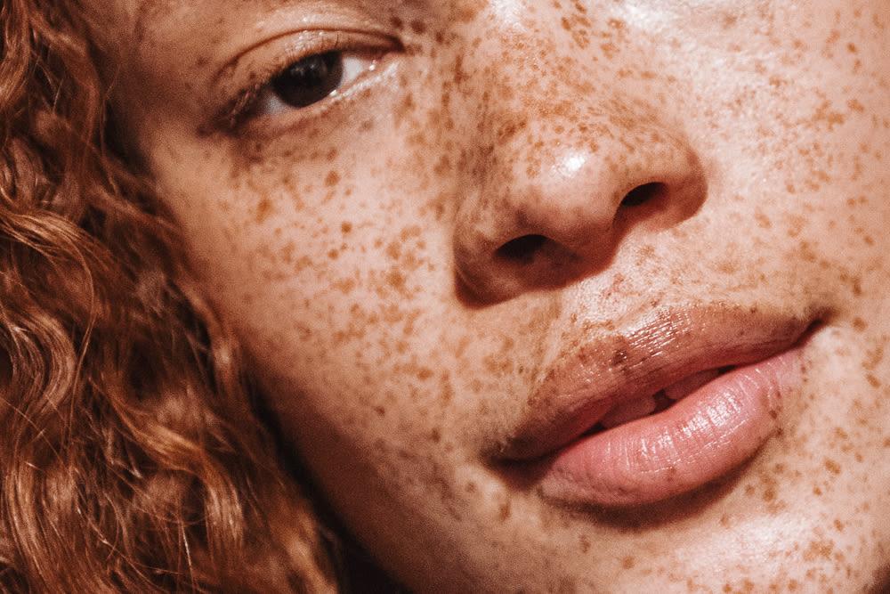 freckles-1